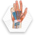 LUX-Red-Light-Therapy-Carpal-Tunnel-Syndrome